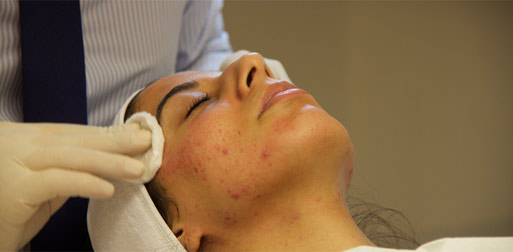 skin-peeling-treatment