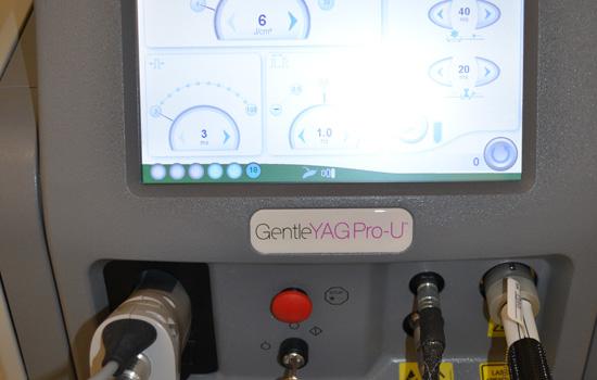 gentleyag laser hair removal machine