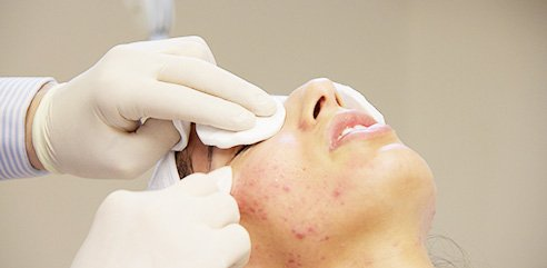 chemical peel courses